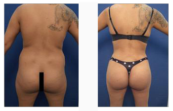 Back contouring with butt lift