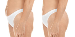 Liposuction Aftercare post surgery side view