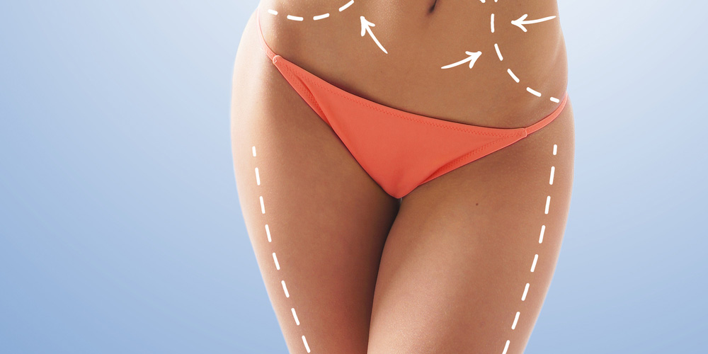 What is VASER Liposuction front view