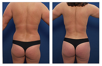 HD VASER Liposuction of the abdomen, upper/middle/lower back, axilla, arms, medial and lateral thighs, CHP, BBL