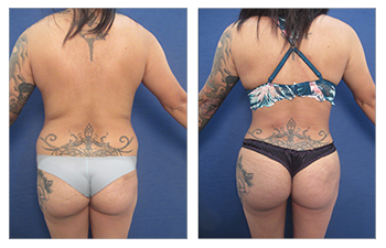High definition liposuction of the flanks, lower back, middle back, upper back, medial thighs, and BBL, abdominoplasty revision, and Renuvion of the medial thighs, flanks, and back.
