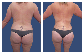 high-definition VASER liposuction of flanks, lower back, lateral thighs, BBL, abdominoplasty with muscle plication, and breast lift.