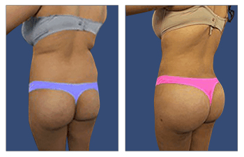 buttock augmentation with implants, and a BBL