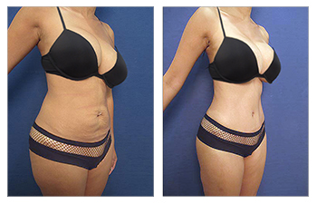 HD VASER lipo of lower abdomen, flanks, lower abck, fat grafting to buttocks and breasts, TT, BA revision