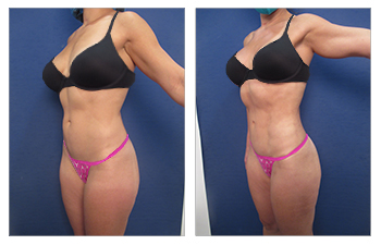 High definition liposuction of the flanks, lower back, middle back, upper back, abdomen, medial thighs, pubic skin resection, buttocks fat grafting, bilateral breast implant removal, capsulotomies, capsulectomies, and implant replacement and breast lift, Renuvion of the upper back, middle back, lower back, flanks, medial thighs.