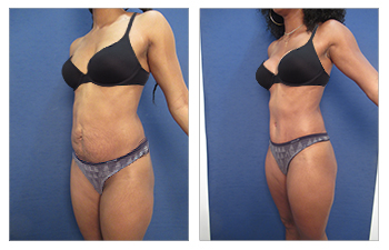 Abdominal reconstruction, pubic adiposity removal
