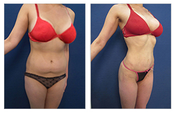 High definition liposuction of the abdomen, back, flanks, arms, axilla, abdomen, and medial thighs, CHP of the abdomen, medial thighs, and fat transfer to buttocks.